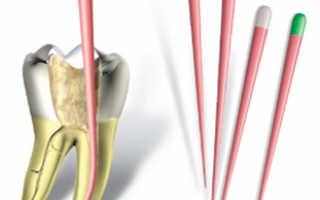 Пломбирование зубов гуттаперчевыми штифтами — лечение, недостатки и плюсы