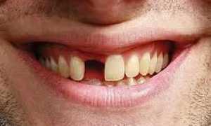 Сколько стоит вставить зубы: металлокерамика, керамика, съемные и несъемные вставные зубы
