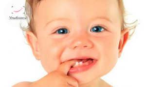 Какие зубы у детей прорезываются наиболее болезненно болезненное прорезывание зубов Развитие ребенка