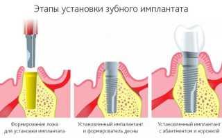 Особенности имплантации зубов во время беременности