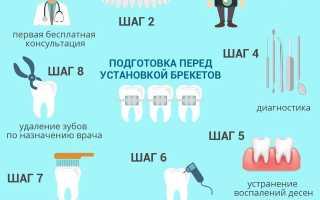 Подготовка зубов к установке брекетов