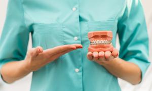 Больно ли ставить брекеты на зубы: описание процедуры и видео