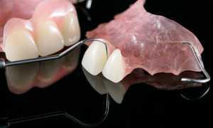 зубные протезы вертекс – как показал себя новый материал для протезирования