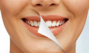 Отбеливание зубов, плюсы и минусы: мнение стоматологов