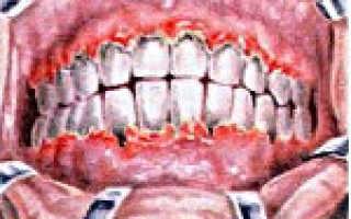 Язвенно-некротический гингивит: лечение острой и хронической формы