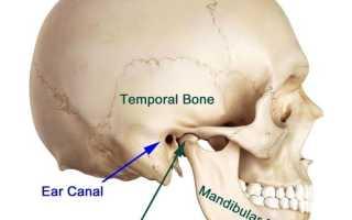 Артрит челюсти: причины, симптомы, лечение, последствия