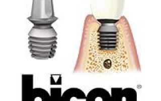 Импланты Bicon – цены и отзывы на имплантаты
