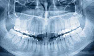 Панорамный снимок зубов и челюсти: как делается обзорный снимок?