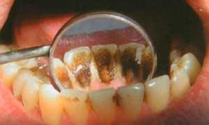 Причины появления коричневого налета на зубах у ребенка. Рекомендации стоматологов: как убрать?
