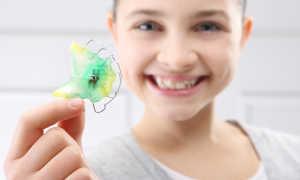 Что такое пластины для выравнивания зубов?