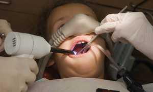 Опасно ли лечить зубы ребенку под наркозом и как проводится процедура