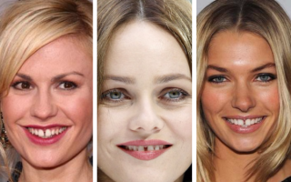 Что такое Трема в стоматологии?