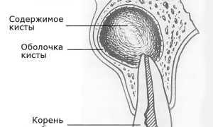 Можно ли пролечить гранулему на корне разрушенного зуба антибиотиком?