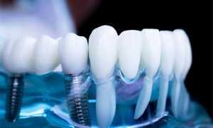 Протезирование после удаления зубов: показания, цены. После удаления зуба когда можно протезировать