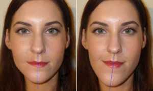 Как неправильный прикус влияет на внешность