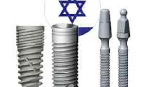 Какие конструкции имплантов зубов предлагают израильские разработчики