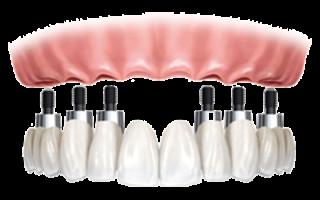 Какой вид протезирования выбрать при отсутствии двух зубов?