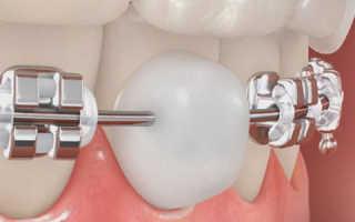 Ортодонтический воск для брекетов