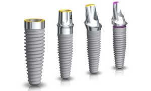Будущее уже наступило. Nobel X-Guide™ – имплантация зубов в режиме реального времени
