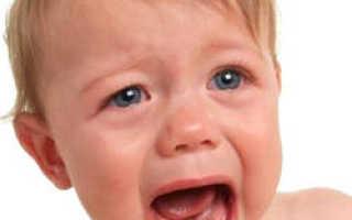 Желтый налет на языке у ребенка – причины и лечение
