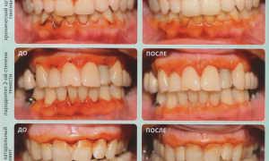 Избавление от заболеваний пародонта с плазмолифтингом в стоматологии