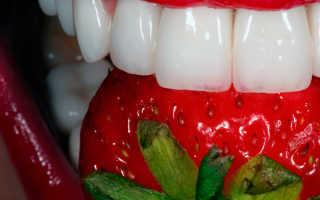 Виниры на кривые зубы: фото до и после установки накладок на передний ряд