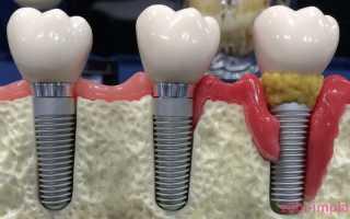 Что делать, если шатается зубной имплант