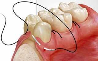 Наложение швов после удаления зуба, показания, техника