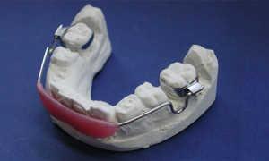Губной бампер для выравнивания зубов