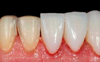 Виниры на передние зубы: установка, виды, показания и противопоказания