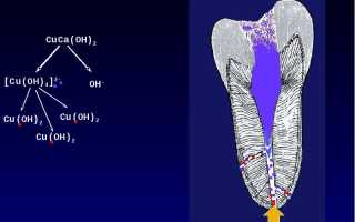 Процедура депофореза в стоматологии: что нужно знать?