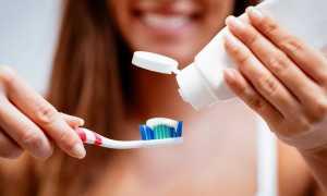 Чистка брекетов: как правильно чистить?