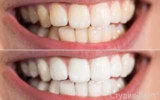 Как отбелить зубы в домашних условиях: 10 проверенных способов