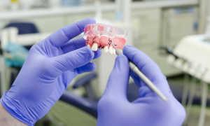 Импланты зубов — что это такое и как их делают: технологии установки, видео имплантации