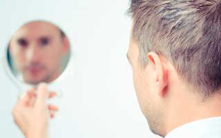 Как меняются четы лица после лечения брекетами