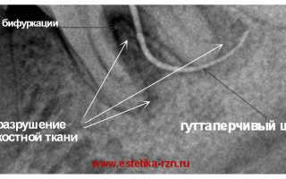 Что такое бифуркация зуба