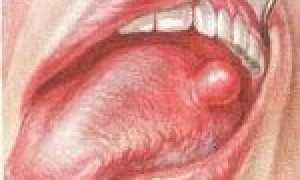 Образование шишки на языке: возможные причины