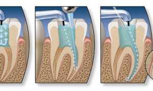 Лечение зубного канала зуба как лечат