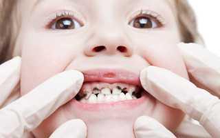 Почему у ребенка почернели молочные зубы?
