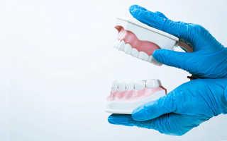 Полный съемный протез при полном отсутствии зубов: выбор и установка