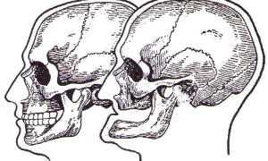 Способы определения и устранения старческой прогении