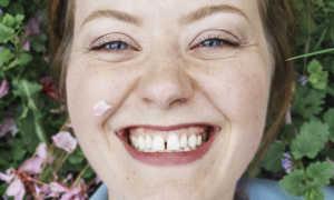 Как убрать щель между передними и другими зубами с помощью брекетов и иных методов?