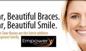 Брекеты Empower – прогнозируемая борьба за красивую улыбку