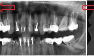 Зубная боль: психосоматика, психологические причины, что делать, если болят зубы слева на нервной почве, как отличить от невралгии