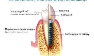 Что такое импланты зубов и как их ставят: все об имплантации