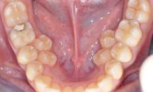 Причины развития полиодонтии у человека