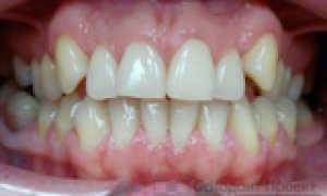 Выравнивание зубов во время беременности