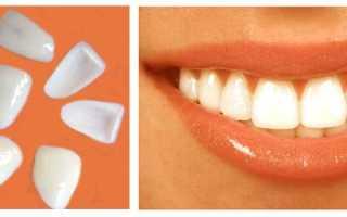 Виниры: минусы и плюсы, отзывы с фото на съемные виниры на зубы, люминиры, преимущества и недостатки