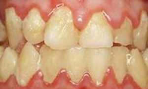 Коричневые пятна на зубах: Что они такое и как от них избавиться