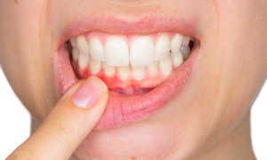 Заболевания гингивит десен у взрослых как лечить болезни зубов и их лечение